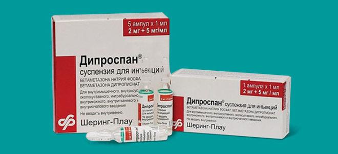 Как действует Дипроспан при псориазе?