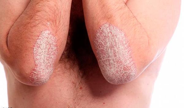 Как выглядит кожа при псориазе?