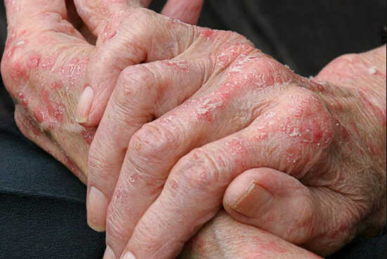 Экзема, как следствие аллергической реакции