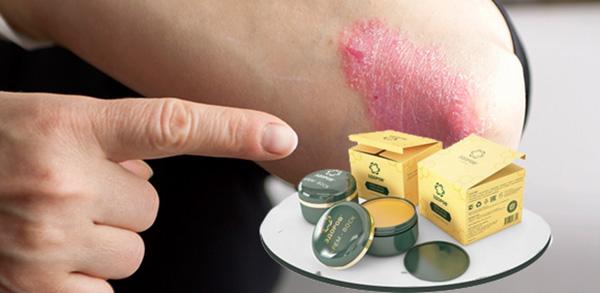 Как использовать крем Здоров против псориаза?